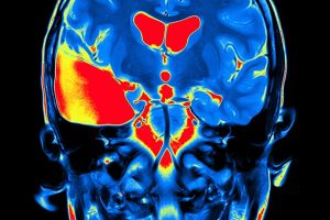 Storytelling - MRI Brain Scan